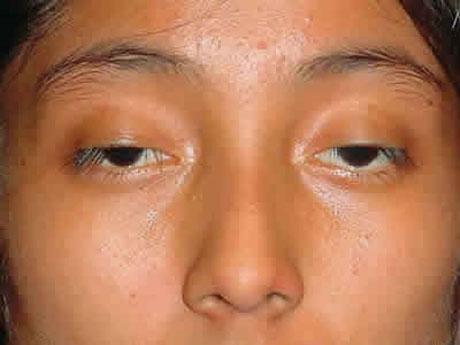 Bị sụp mí mắt, nguyên nhân và cách điều trị