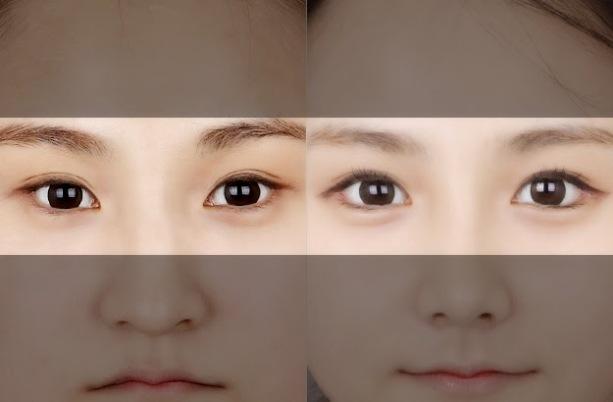Tìm hiểu về thủ thuật cắt khóe mắt cho mắt to tròn dễ thương