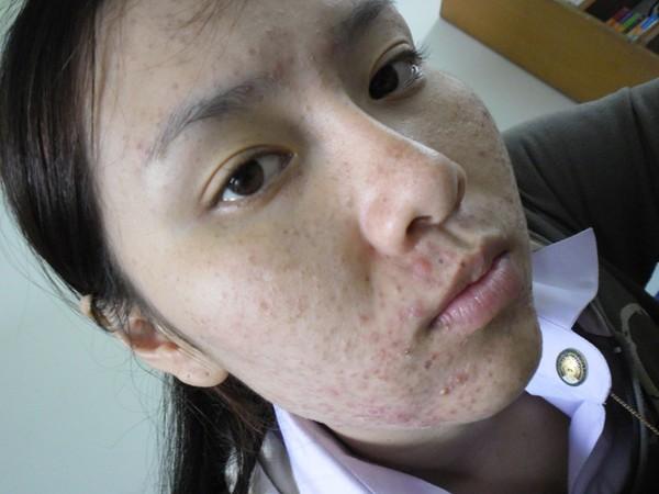 dung-kem-tron-khong-ro-nguon-goc-co-gai-xinh-dep-thai-lan-moc-mun-chi-chit-3.jpg