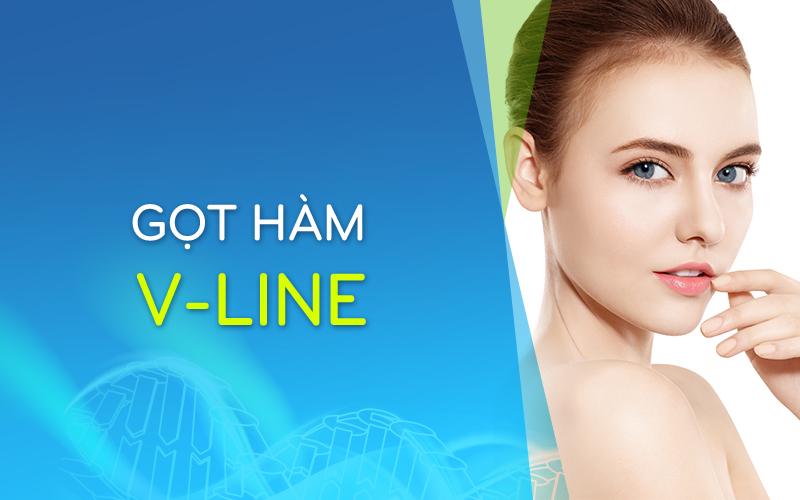 GothamV-line_800x500.jpg