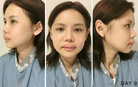 hot-girl-singapore-cong-khai-loat-anh-sung-phu-do-phau-thuat-tham-my-10.JPG