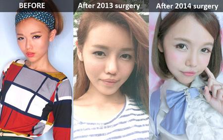 hot-girl-singapore-cong-khai-loat-anh-sung-phu-do-phau-thuat-tham-my-11.jpg