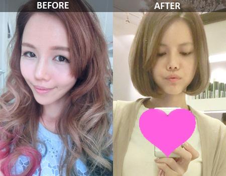 hot-girl-singapore-cong-khai-loat-anh-sung-phu-do-phau-thuat-tham-my-16.jpg