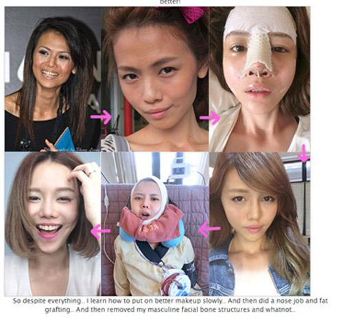 hot-girl-singapore-cong-khai-loat-anh-sung-phu-do-phau-thuat-tham-my.-1JPG.JPG