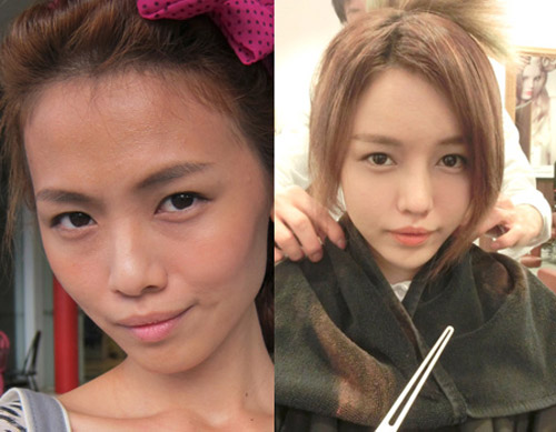 hot-girl-singapore-cong-khai-loat-anh-sung-phu-do-phau-thuat-tham-my-2.jpg