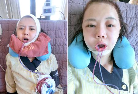 hot-girl-singapore-cong-khai-loat-anh-sung-phu-do-phau-thuat-tham-my-4.JPG