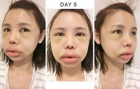 hot-girl-singapore-cong-khai-loat-anh-sung-phu-do-phau-thuat-tham-my-8.JPG