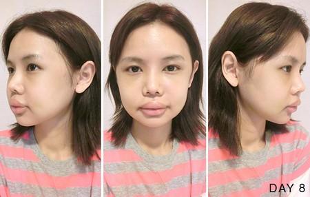 hot-girl-singapore-cong-khai-loat-anh-sung-phu-do-phau-thuat-tham-my-9.JPG