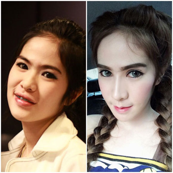 hot-girl-thai-lan-nghien-phau-thuat-tham-my-2.jpg