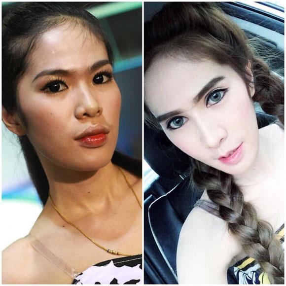hot-girl-thai-lan-nghien-phau-thuat-tham-my-3.jpg