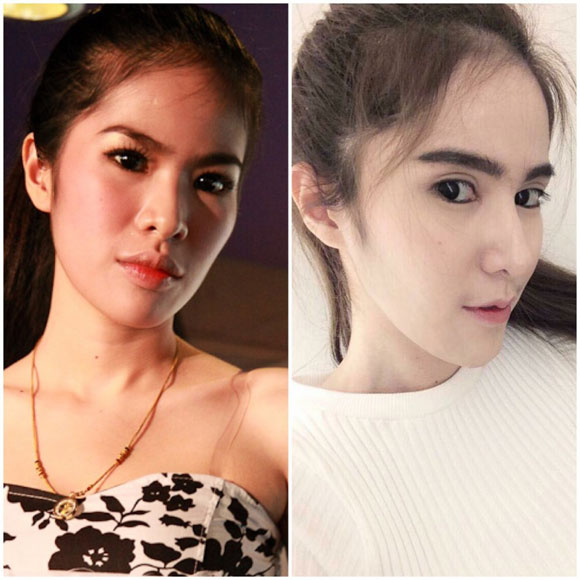 hot-girl-thai-lan-nghien-phau-thuat-tham-my-4.jpg