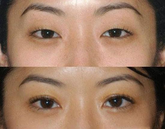 Thế nào là mắt 2 mí và cách tạo mắt 2 mí đẹp