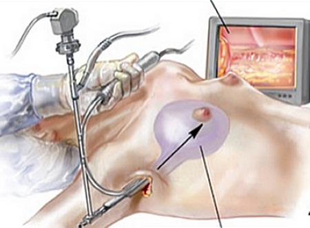 Tìm hiểu về kỹ thuật nâng ngực nội soi đường nách