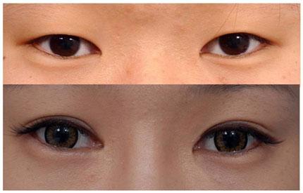 Phương pháp nhấn mí mắt có hại không?