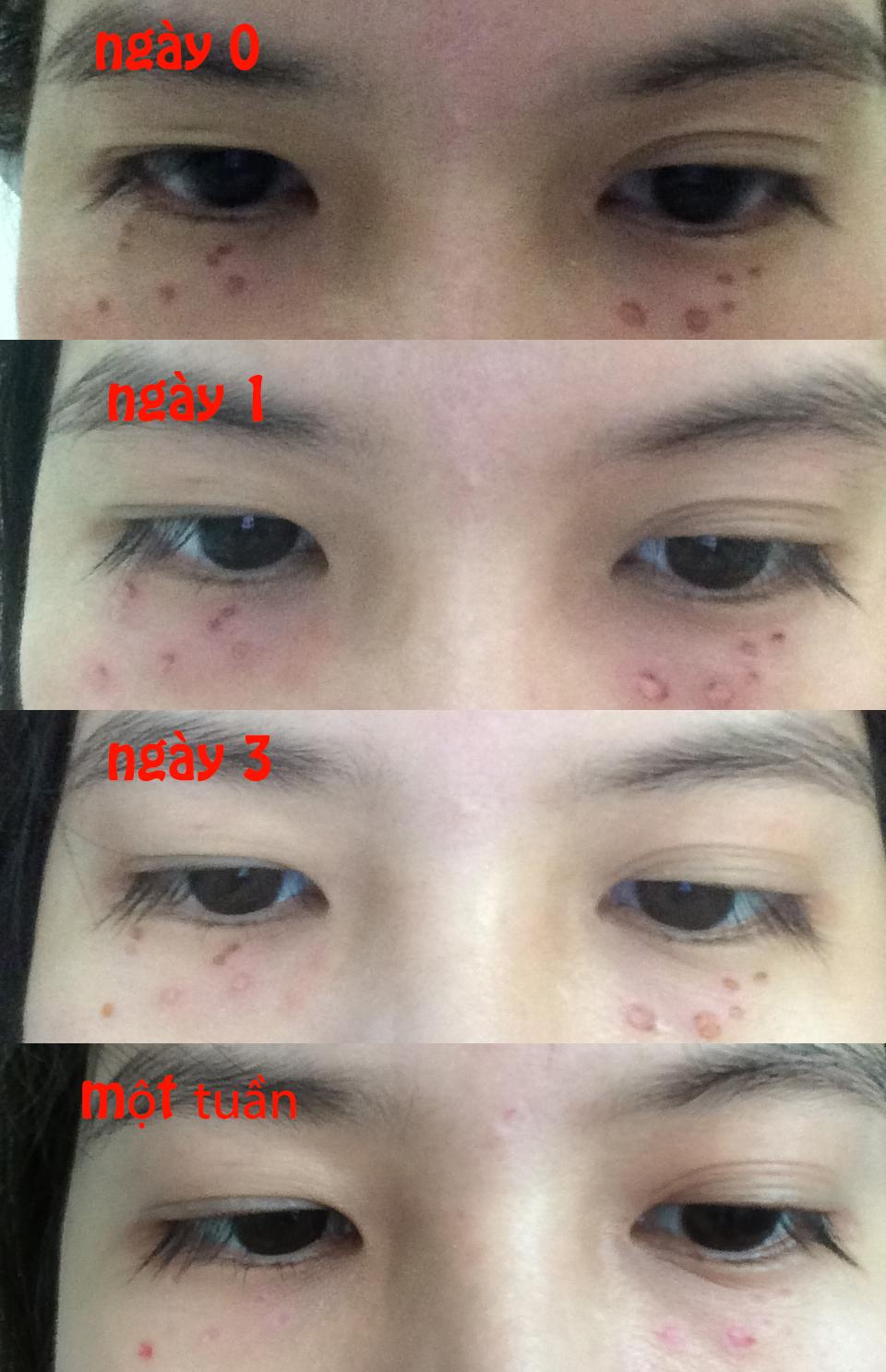 nhat-ky-dot-mun-thit-bang-laser-2.jpg
