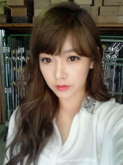 soyeon-phau-thuat-tham-my-3.jpg