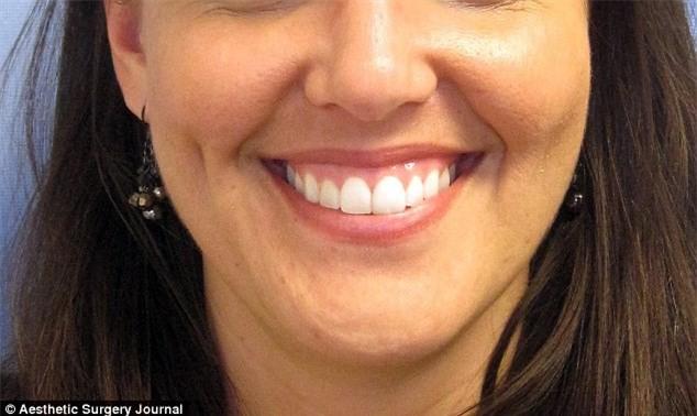 Trao-luu-tiem-Botox-cai-thien-nu-cuoi-1.jpg