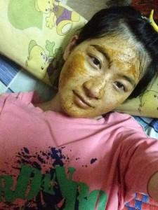 Hành trình trị tàn nhang gian khổ của 1 cô gái trẻ
