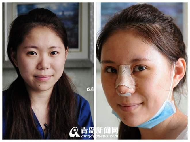 co-gai-trung-quoc-phau-thuat-tham-my-vi-luoi-make-up11.jpg