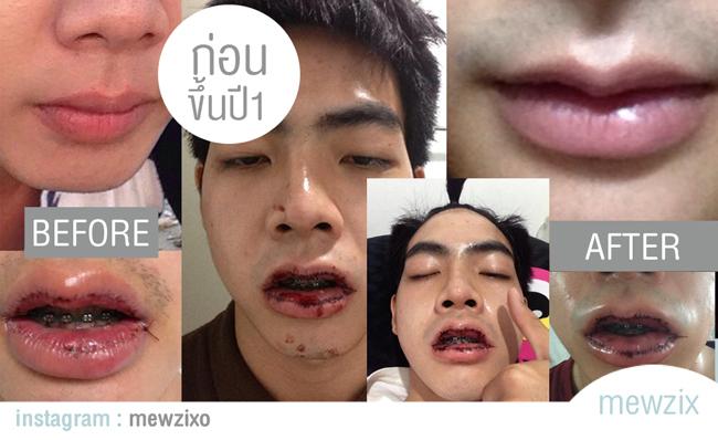 hot-boy-thai-lan-khoe-anh-phau-thuat-ca-ham-rang-gay-soc1.jpg