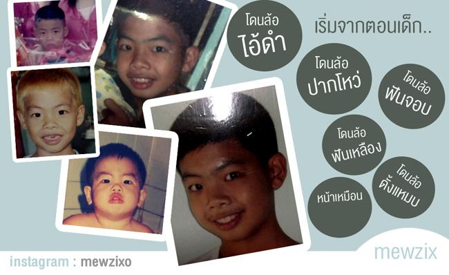 hot-boy-thai-lan-khoe-anh-phau-thuat-ca-ham-rang-gay-soc2.jpg