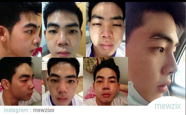 hot-boy-thai-lan-khoe-anh-phau-thuat-ca-ham-rang-gay-soc3.jpg